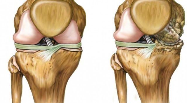 Os melhores remédios naturais para a recuperação da cartilagem do quadril e joelhos | Cura pela Natureza