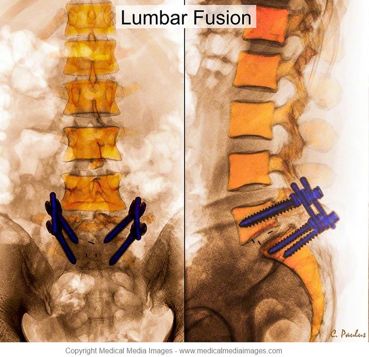 disc arthroplasty essay Imaging current spine hardware: part 1, cervical spine and fracture fixation et al prevalence of heterotopic ossification following total disc replacement.