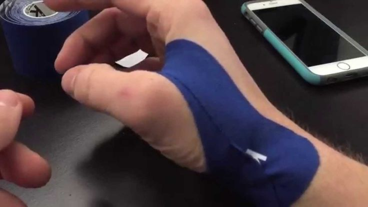 Site, with thumb tendonitis massages you tell