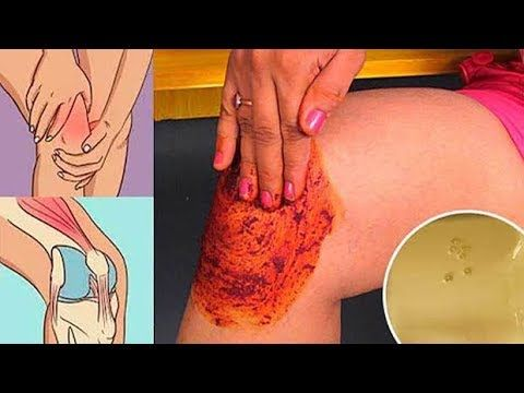 ذُهل الناس بهذه الوصفة . فهي تشفي الركبة والعظام والمفاصل وآلامها - YouTube