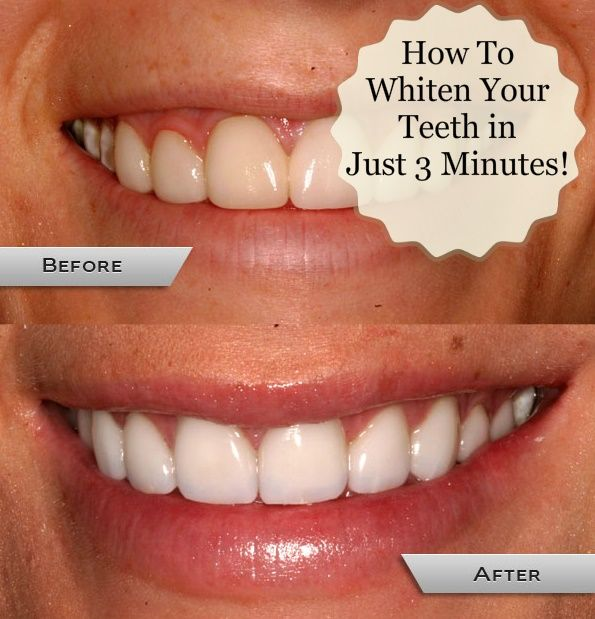how to whiten your teeth in just 3 minutes