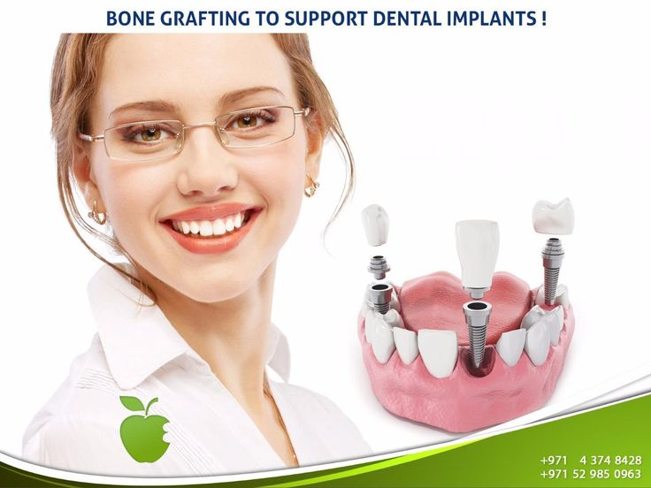 Bone Grafting to support Dental Implants!  Strong bones are needed to support Dental Implants and hold them into the jawbone! That`s exactly what bone grafting do… Dentists use special grafting materials and graft it onto your jaw bone to make it harder in few months.  Call us NOW  +971 4 374 8428  #AMDC #Dental_clinic #Dentist_Dubai #Veneer #Dental_Implants #Invisalign #braces #teethwhitening #ZoomWhitening #Mydubai #Dubai #UAE #Quality #Topdentist #love #Smile #happy #happiness #myfamily…