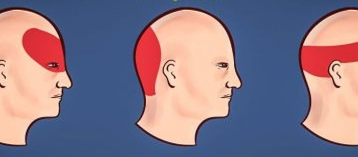 Sbarazzarsi del terribile mal di testa in soli 5 minuti e senza pillole: vediamo come fare, è semplicissimo e basta seguire questi semplicissimi passaggi Sbarazzarsi del ?