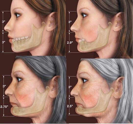 As we age, we lose substance. Calcium, collagen, water, muscle tone, hair, hormones and many other compounds that not only will show the aging process, but that also may affect function, like teeth loss. Aging makes facial bones and tissues decrease in volume and thickness, and teeth loss makes it way more severe. All structures related will suffer consequences, but the leftover skin around bone loss may fold and create creases and depressions that are not natural to the face. There are…