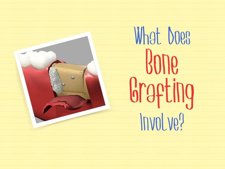 There are several types of bone grafts are available in our office. Our oral surgeons will determine the best type depends on the state of the teeth. Types of Bone Grafting: •Autogenous Bone Graft •Allograft Bone Graft •Xenograft