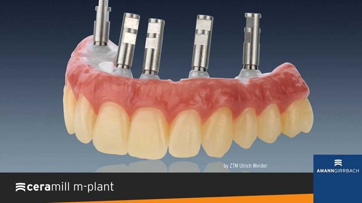 Made with Ceramill - High-end master pieces from Ceramill users.