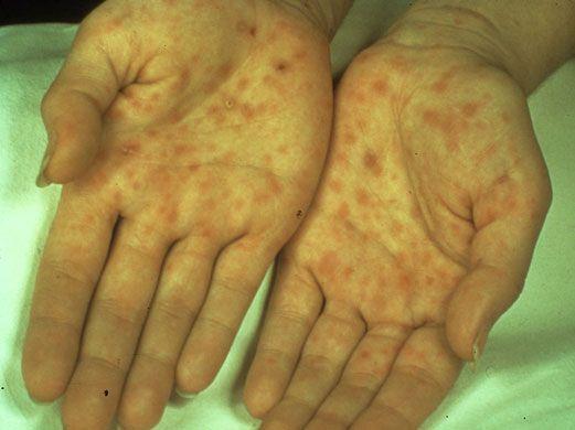 Classic Presentation Of Secondary Syphilis Palmar Rash -7406