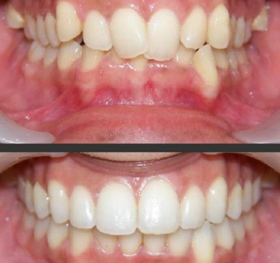 Cfast braces at Bury Dental Centre. Straighter teeth in ~6 months.
