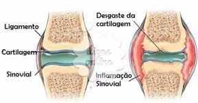 cartilagem_2_dicas_online