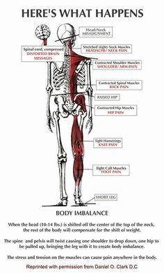 Hip, knee, ankle, rib, neck, and head Pain resolved – Upper Cervical specific