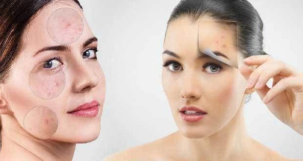 Neden Profesyonel Akne Tedavisi Tercih Etmeliyiz? – ABC Kadın Sitesi