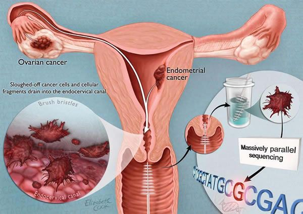 Types and Five Major Causes of Ovarian Cancer