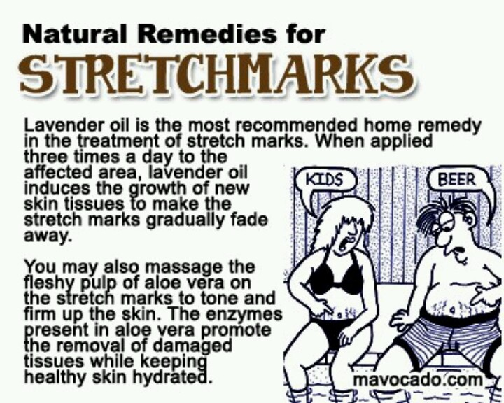 How To Remove Stretch Marks After Pregnancy Fast In Hindi Uses