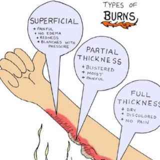 Use this picture diagram to help you remember the three types of Burns - very helpful for passing the NCLEX!