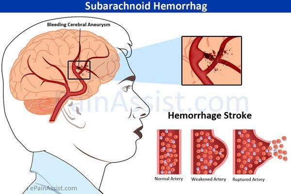Subarachnoid Brain Hemorrhage: Causes, Symptoms, Treatment- CT Scan, Surgery #Subarachnoid #BrainHemorrhage #strokesurvivor #subarachnoidbrainhemorrhage #CTScan #ePainAssist Visit: http://www.epainassist.com/sports-injuries/head-and-face-injuries/subarachnoid-hemorrhage