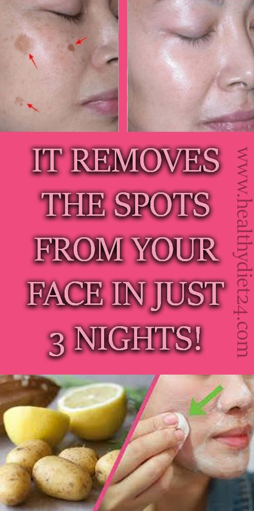 IT REMOVES THE SPOTS FROM YOUR FACE IN JUST 3 NIGHTS!