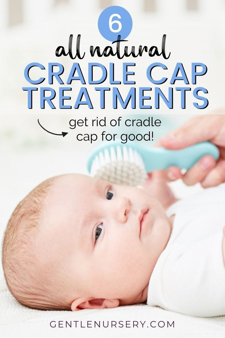 Try These Six Cradle Cap Treatments That Actually Work In 2020 Cradle Cap Treatment Cradle Cap New Baby Products