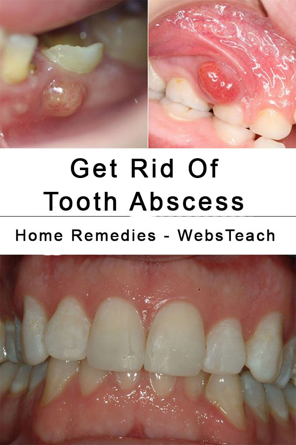 Natural Way To Get Rid Of A Tooth Infection