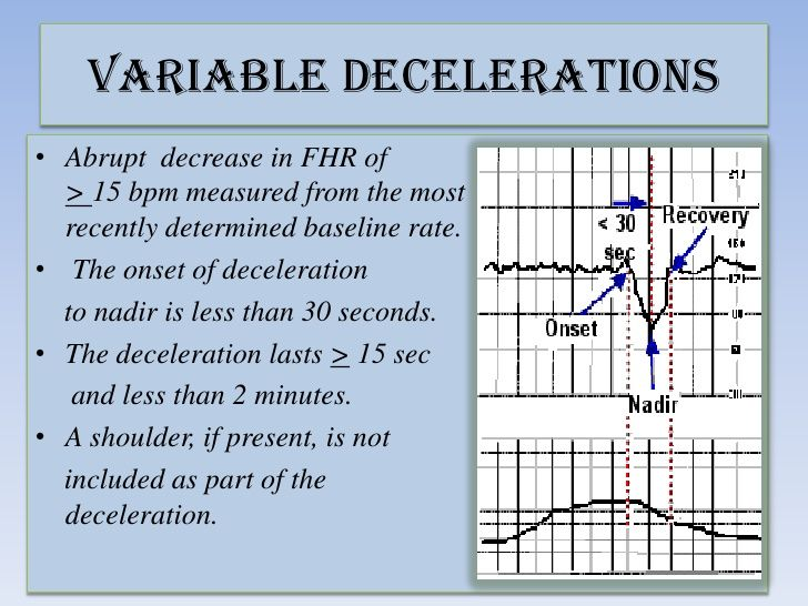 variable deceleration definition - Google Search | Ob