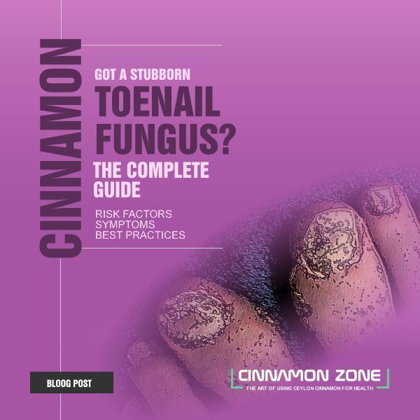 The blog post with complete instructions for the toenail fungus treatment with C