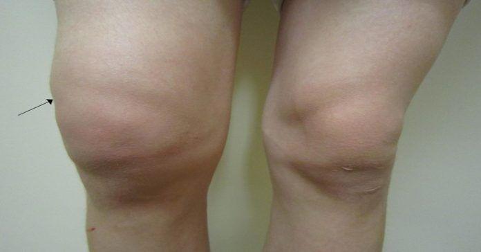Жидкость в коленном суставе? Смотрите простейший способ избавиться от нее