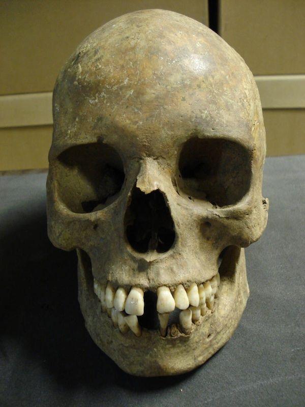Secuencian el genoma de la bacteria que causó la peste negra en el siglo XIV.