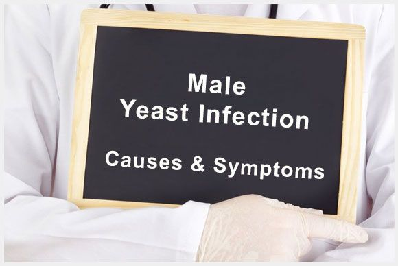 Male yeast infections usually affects the head of the penis or its foreskin. Most men who suffer from yeast infections, get it from their partners