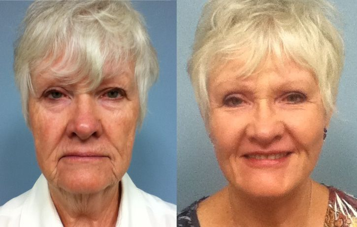 Reviving And Revitalizing Facial Skin Tasking Face Revitalization Aerobics