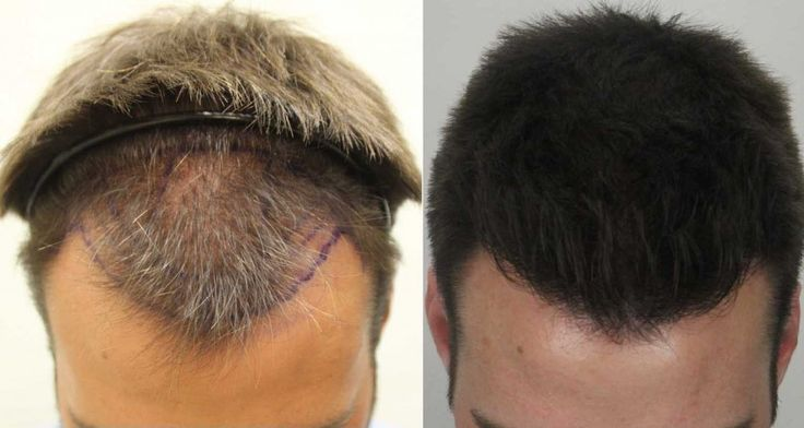 Revive hair and Skin clinic is a hair transplant clinic in Brentwood which is an ideal treatment for people who are losing hair. We offer both FUT and FUE Hair Transplant Procedures. For more information related to our services please visit our website.