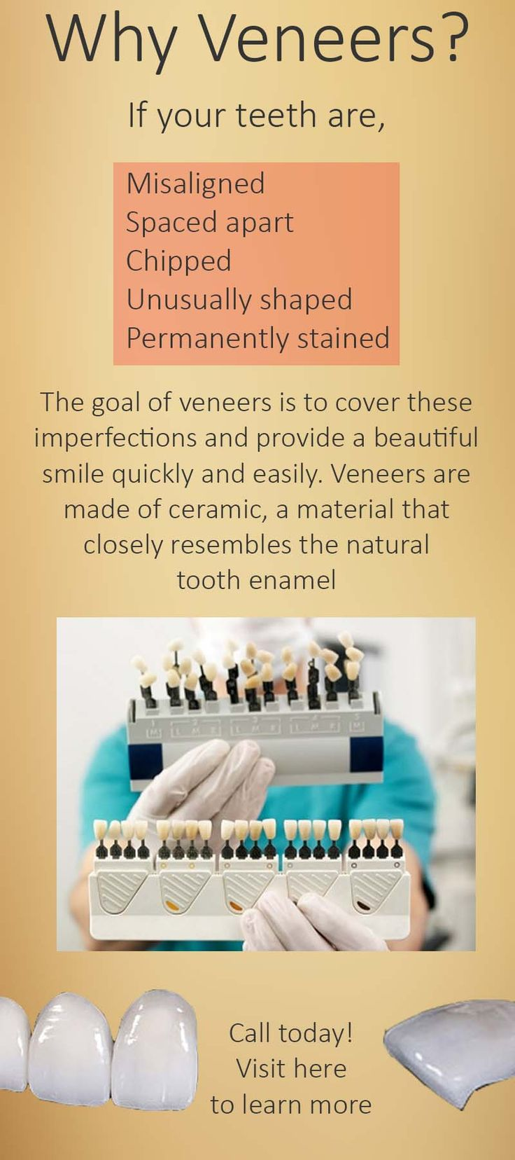 Dr. Stephen Matarazzo of Quincy, MA offers dental veneers for patients searching for dental services near me. Call 855-315-7155 #veneers #dental #dentistry #dentist #oral #health #Quincy #MA #02169