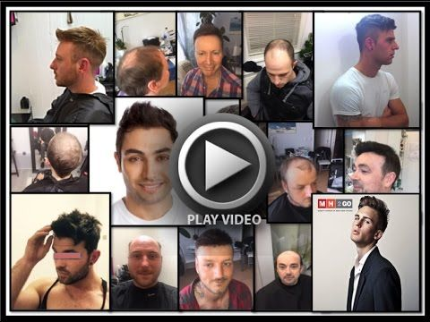 Men's Hair Loss/Replacement London - Hairloss  Baldness  Hair Wigs  Hair Toupees  Hair pieces