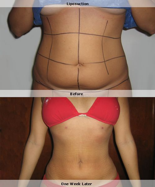 Liposuction  before and After female #tummytuck #bodycontouring #newbody stlouis-liposuction.com