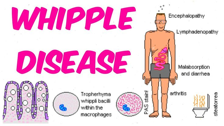 Image result for whipple disease