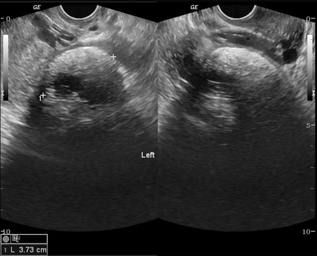"WK 4 L 2 DERMOID OR CYSTIC TERATOMA WITH ""TIP OF THE ICEBURG SIGN"" Mature (cystic) ovarian teratoma 