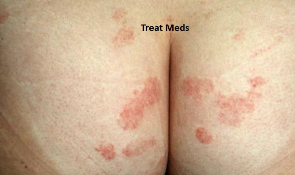 Itchy Rash on Buttocks Causes, Pictures, Remedies and When to See a Doctor #pimplesonbuttocks