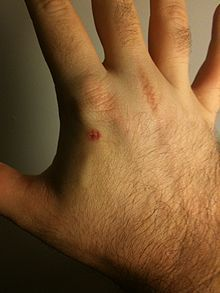 The US government set the stage for RFID microchip implants in its citizens?