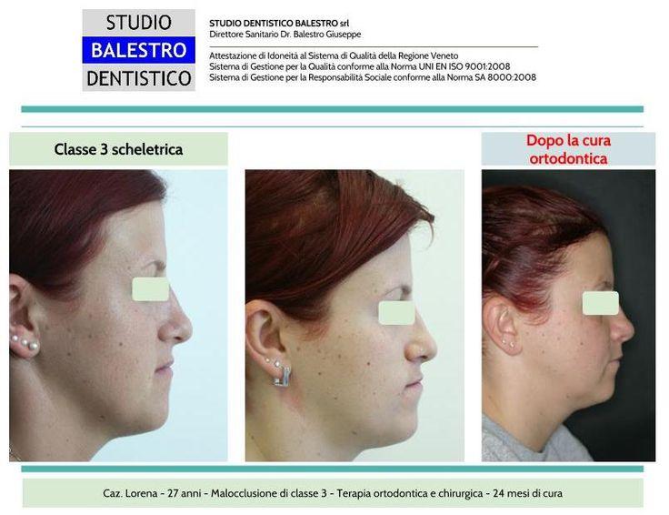 Casi clinici ortodontici Chirurgia Ortognatica di una Classe 3 scheletrica http://www.studiodentisticobalestro.com/2016/06/chirurgia-ortognatica-classe-3.html