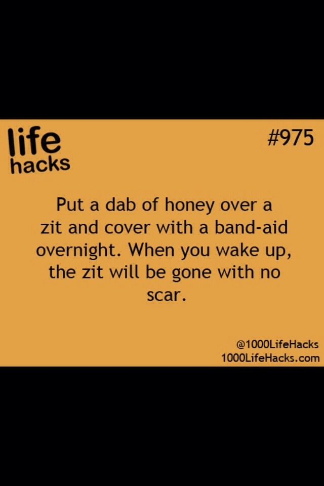 Get Rid Of Zits OVERNIGHT!! All Natural!