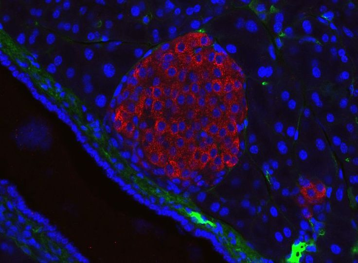 Stem cells, a future treatment for diabetes that emerges from their capacity get transformed to pancreatic cells, capable to produce insulin.