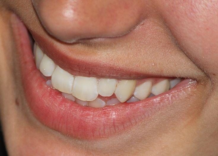 Vlastnit jasné bílé zuby a zářivý úsměv je to nejlepší, co člověk může mít a nabídnout ostatním. Úsměv, jak známo, šíří pozitivní energii.