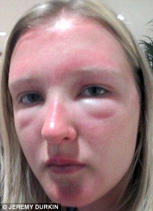 Movie About Kid Allergic To Sun