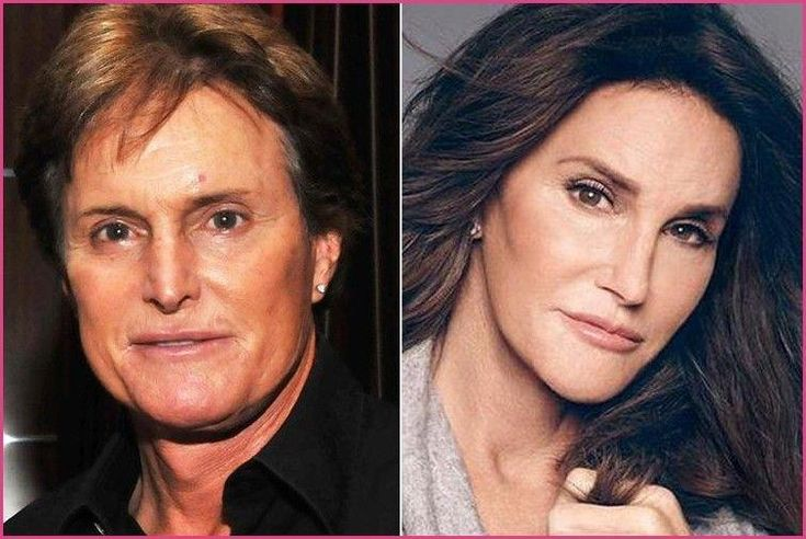 Image result for celebrities who had plastic surgery | Celebrities ... #celebrit...