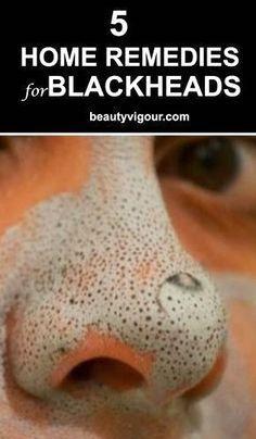 Home #Remedies For Blackheads #diy beauty #SkinCar…