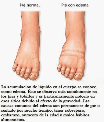 Causas y remedios naturales para los pies y los tobillos hinchados