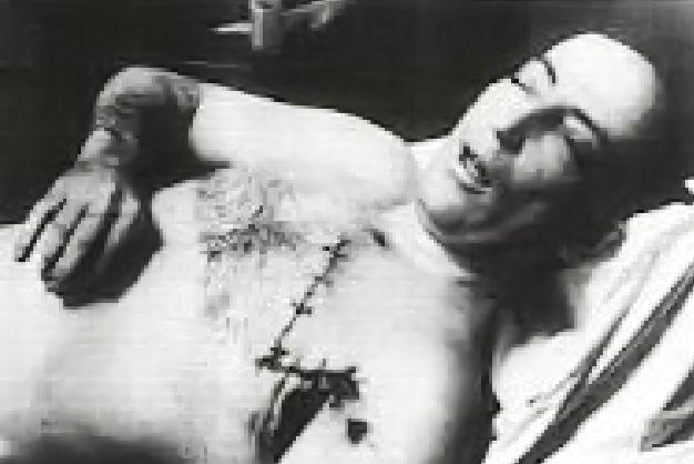 Abe Landau morgue photo.