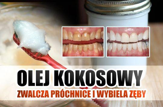 naturalna pasta do zębów z oleju kokosowego