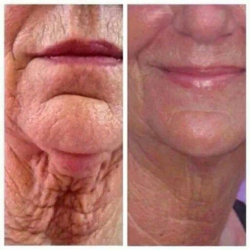 What are you waiting for? Try Nerium today!