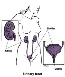 Obat Nyeri Buang Air Kecil Pada Wanita: Mengobati Nyeri Buang Air Kecil Secara Alami