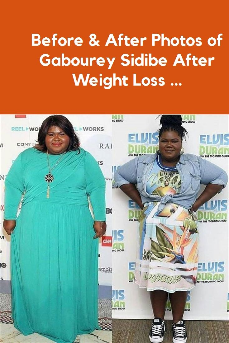 Gabourey Sidibe Before After : gabourey, sidibe, before, after, Weight, Before, After, Photos