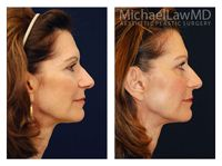 Facial Fat Grafting Patient 5 Before and After 6 months. Beautiful and Natural looking results by Dr. Michael Law. For more info call (919) 256-0900 or visit   http://www.michaellawmd.com/rejuve.html  #fatgrafting #facialfatgrafting #plasticsurgery #plasticsurgeon #bestplasticsurgeon #bestplasticsurgery #raleighplasticsurgeon #michaellawmd #mlmd #bluewaterspa #bluewatersparaleigh #plasticsurgerybeforeandafter #beforeandafter #photos #postop #6months #naturalresults #bestresults